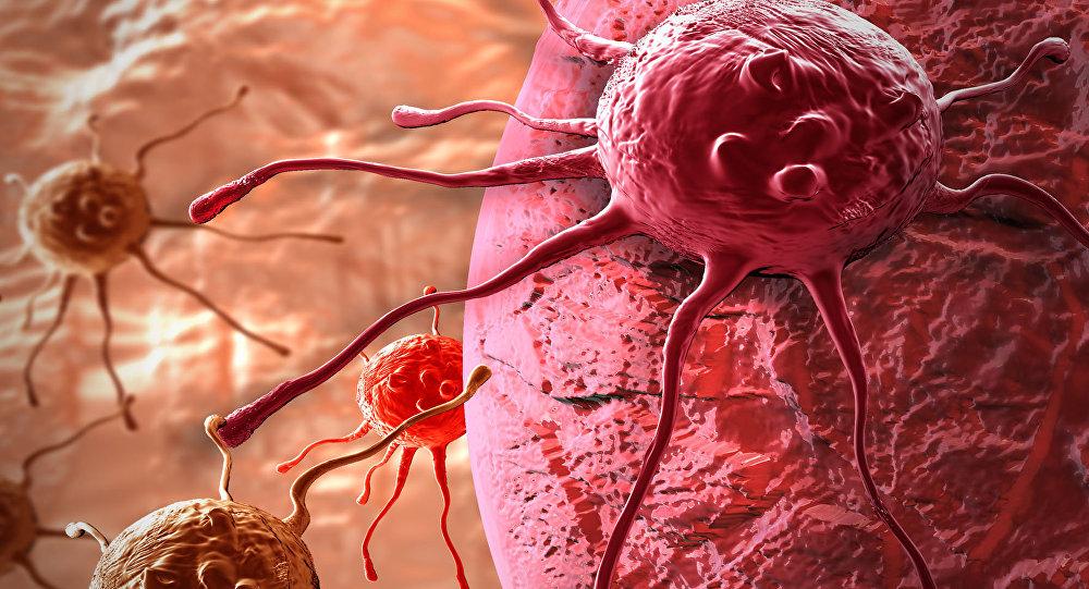 Nga phát minh thiết bị chẩn đoán sớm ung thư, bệnh lao